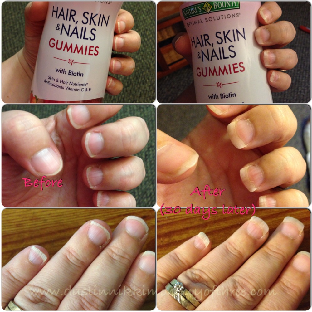 Natures Bounty Hair Skin Nails Gummies Review Ad